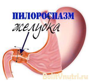 pilorospasm 300x276 - Пилороспазм у взрослых: симптомы, критерии диагностики и лечение
