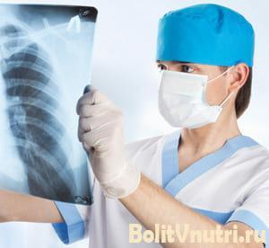 Симптомы и лечение гастродуоденального рефлюкса