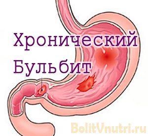 Симптомы и лечение хронического бульбита