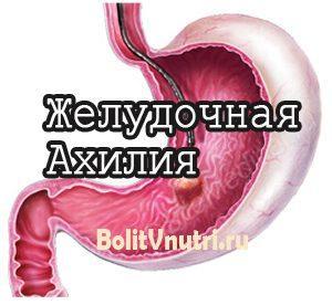 Симптомы и лечение желудочной ахилии (ахлоргидрии желудка)
