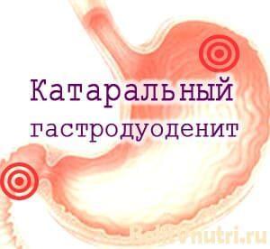 Катаральный гастродуоденит