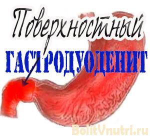Симптомы и лечение поверхностного гастродуоденита