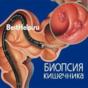 diagnostika - Симптомы и лечение кампилобактериоза у человека